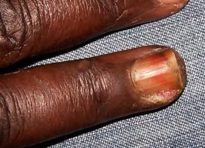 Quoi craint le microorganisme végétal des ongles
